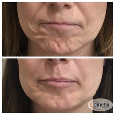 Before & After of a Botox treatment (Botulinum Toxin) around the mouth to treat Hyperactive Mentalis Muscle which can create dimpling and roughened skin appearance over the chin.