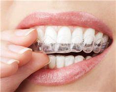Blanchir ses dents chez le dentiste : déroulement, tarifs