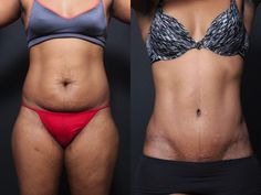 - This patient had a tummy tuck 6 months ago. When designed and performed properly… This patient had a tummy tuck 6 months ago. When designed and performed properly… – Tummy Tuck Prices, Tummy Tuck Cost, Tummy Tuck Before After, Tummy Tuck Tattoo, Tummy Tuck Scars, Mini Tummy Tuck, Tummy Tucks, Mommy Makeover, Shopping