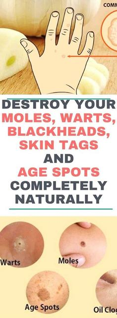 Destroy Your Moles, Warts, Blackheads, Skin Tags And Age Spots Completely Naturally - Healthy Advice Natural Health Tips, Natural Skin Care, Natural Face, Natural Makeup, Natural Beauty, Warts On Face, Get Rid Of Warts, Remove Warts, Skin Moles