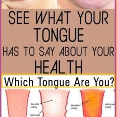 WHAT YOUR TONGUE CAN TELL YOU ABOUT YOUR HEALTH Healthy Tongue, Healthy Kidneys, Colon Problems, Thyroid Problems, Signs Of Adrenal Fatigue, Adrenal Cortex, Low Stomach Acid, Regulate Blood Sugar, Bodily Functions