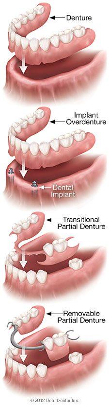 Removable Dentures #AugustineDental #AugustineKeepsYourTeethClean #Dentist #ATX