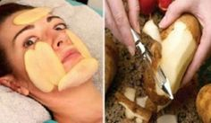 Acne And Oily Skin Get Rid Of Your Acne For Good! Acne is a nightmare cosmetic problem for sure. Many acne patients somet. Age Spots On Face, Age Spot Removal, Pele Natural, Salud Natural, Cystic Acne Treatment, Raw Potato, Tips Belleza, Flawless Skin, Skin Care
