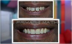 Smile makeovers with porcelain veneers, dental veneers can give you the smile of your dreams and this is just in affordable cost at Smilekraft Dentistry in Wakad, Hinjewadi, Baner, Pimple Nilakh, Vishal Nagar, Pune, India. Click Here For More Details: www.smilekraftdentistry.com