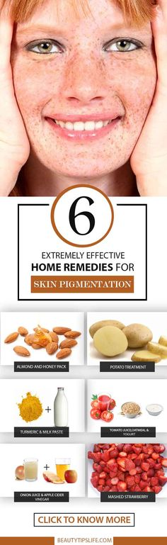 6 Extremely Effective Home Remedies For Skin Pigmentation