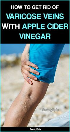 How Does Apple Cider Vinegar Help Varicose Veins? Apple cider vinegar has many powerful ingredients that helpful to provide many benefits at same time.Here How to Use Apple Cider Vinegar for Varicose Veins? Home Remedies For Colds For Babies, Home Remedies For Uti, Natural Health Remedies, Natural Cures, Holistic Remedies, Cold Remedies, Homeopathic Remedies, Varicose Vein Remedy, Varicose Veins Treatment