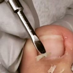 Toenail cliippers for the proper pedicure and nail treatment. Quiropedia👣 with ingrowntoenails