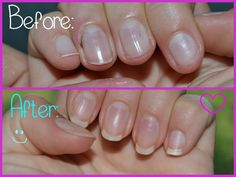 how to grow your nails faster and longer + DIY 'nail bath'