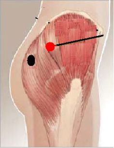 how to give injection in deltoid muscle