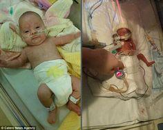 A britânica Molie Perrin nasceu prematura de 13 semanas no dia 27 de abril deste ano. O primeiro registro fotográfico da menina mostra que o seu braço era mais fino que a aliança de casamento do seu pai.