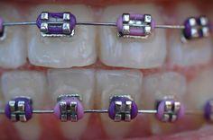 braces colors   Braces Rubber Bands Colors