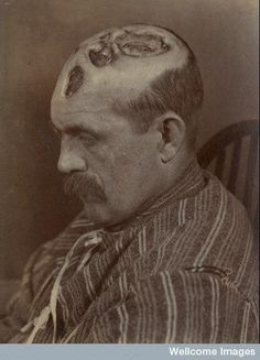 Photograph (1894) of the head of a man aged 39 years, who had contracted #syphilis 12 years previously