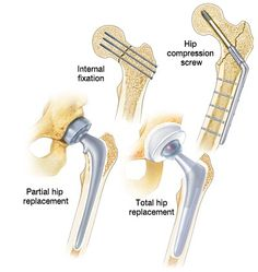 DePuy Synthes and Stryker Lead Orthopedic External Fixation Trauma Device Market Due to Increased Hip Fractures in the U. Hip Fracture, Surgical Tech, Hip Replacement, Scrub Life, Pain Management, Trauma, Medical, Disorders, Physical Therapy