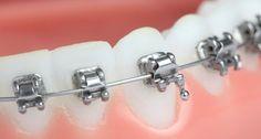Dentes Alinhados em Tempo Record!