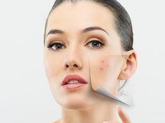 ¡Adiós al acné! Cuida la #salud de tu piel con estos remedios que encontrarás en casa.