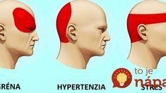 Takto sa zbavíte bolesti hlavy za 5 minút: Bez tabletiek a bez toho, aby ste niekam chodili