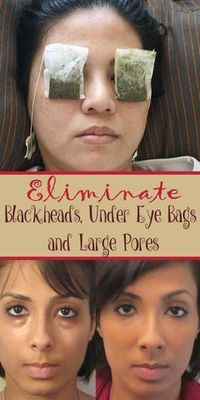 Eliminate Blackheads, Under Eye Bags And Large Pores