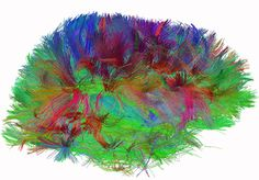 diffusionMRI image of neural connections in the brain. Developed by  Van Wedeen (Harvard).