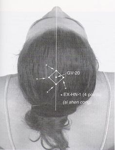 If a headache or migraine arises from too much liver heat, you can use acupuncture point GV 20.  This point helps to descend the qi that is rising rapidly to the head.