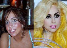 Stephanie Germotta - aka Lady Gaga Lady Gaga Plastic Surgery, Celebrity Plastic Surgery, Lady Gaga Nose, Photoshop, Botox Results, Botox Brow Lift, Operation, Coconut Oil For Skin, Chemical Peel