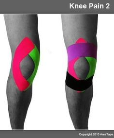 Remedies For Knee Pain Kinesio-taping for Kenny Kt Tape Knee, Knee Taping, Yoga, K Tape, Studio Pilates, Home Remedies For Arthritis, Knee Exercises, Kinesiology Taping, Knee Arthritis