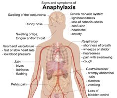 anaphylaxis - Signs and symptoms