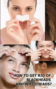 How to Clean Clogged Pores. If you're struggling with acne, you may have dirt, oil, or other grime trapped in your pores. While the actual size and appearance of your pores are genetic and can't be changed, there are a few ways deep-clean. Black Spots On Face, Brown Spots On Skin, Skin Spots, Dark Spots, Brown Skin, Dark Brown, Clogged Pores On Nose, Nose Pores, Unclog Pores