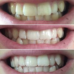 AP24 whitening toothpaste - incredible results - completely 100% safe and no peroxide - patented formula - cannot be purchased on the high street 💕