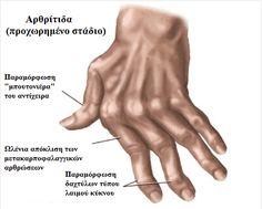 7 φυσικές θεραπείες για την αρθρίτιδα στα χέρια - Με Υγεία