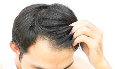 Once HAIRMETTO is allowed to penetrate the roots for a length of time on a regular basis, the roots are being nourished back to health. The sooner you start, the sooner you will see results. If hair loss has occurred over many years, then regrowth may take longer than for someone who has experienced recent hair loss.   #HAIRMETTO #hair #hairgrowth #hairgrowthtakestime #hairgrowthproducts #hairgrowthtreatment #hairlosssolution #hairlosstreatment #hairlossprevention #hairlossproducts