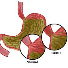 Acid Reflux Diet Menu? GERD? I Have A Great Remedy To Avoid It Or Never To Get It Again!