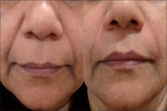 Do You Possess Deep Marionette Lines? Do These Facial Workout Techniques To Eradicate Them Facial Muscle Exercises, Face Exercises, Facial Muscles, Yoga Exercises, Facelift Without Surgery, Sagging Face, Marionette Lines, Nasolabial Folds, Facial Yoga