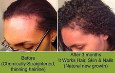 Hair skin and Nails Questions? call/text 520-840-8770 http://bodycontouringwrapsonline.com/hair-skinnails