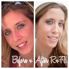 """This Bride-to-be has Smooth, Flawless & Foundation - Free Skin!  """" Aging backwards is a thing when you use R+F!! Check out my before pic at age 30 before Rodan+Fields. The after is me now!! Foundation Free at 33!!! Love it!!!"""" - Mandie Davis (Sista Mary)  Ready to turn back time or Maintain your Youthful Skin...I've got what you need...Message Me! www.TaraCampbell.myrandf.biz"""