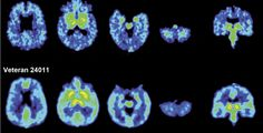 A new UCLA study takes another step toward the early understanding of a degenerative brain condition called chronic traumatic encephalopathy, or CTE, which affects athletes in contact sports who are exposed to repetitive brain injuries. Using a new imaging tool, researchers found a strikingly similar pattern of abnormal protein deposits in the brains of retired NFL players who suffered from concussions.  The innovative imaging technique uses a chemical marker combined with positron emission…