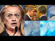 Obama's 3 Head Scars and Hillary's 9/11 Seizure Explained: The Beast Has Its Head Wounded - YouTube