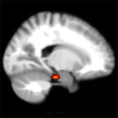 The part of the brain that tells us the direction to travel when we navigate has been identified by scientists, and the strength of its signal predicts how well people can navigate. In other words, the researchers have found where our 'sense of direction' comes from in the brain and worked out how to measure it using functional magnetic resonance imaging, fMRI....in other words, why some people get lost a lot!