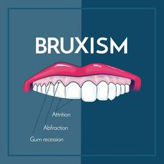 Dentaltown - Bruxism is excessive teeth grinding or jaw clenching, and causes tooth wear and breakage, jaw disorders, and headaches! If you notice any of these side effects, please see your dentist.