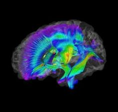 Brain Imaging Differences Evident at 6 Months in High-Risk Infants Who Later Develop Autism