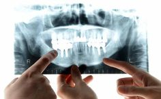 Humans May One Day Regrow Their Own Teeth