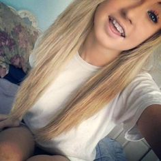 finally a girl who has braces and is still preety