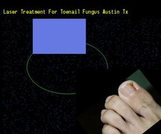 Laser treatment for toenail fungus austin tx - Nail Fungus Remedy. You have nothing to lose! Visit Site Now