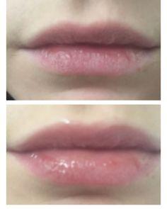 Antes y después con Instant Lip En tan solo dos minutos da volumen a tus labios.  Un gloss que te aporta un 20% más de volumen a tus labios sin molestos picores o molestias. También experimentarás un aumento de la hidratación , líneas (Código de barras) reducidas , dando una apariencia más suave, y un aumento en el color de sus labios. #myinstanteffects #myinstantlips #bbloggers #bblogger #lips #plump #plumplips #beautyblogger #instantbeauty #pout #instanteye #skincare #instantlash…