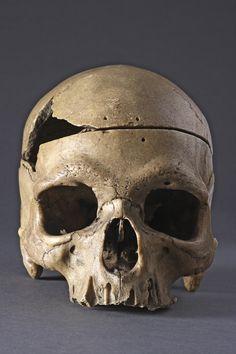 Rare and Interesting Ancient Prehistoric 'Classic' Neanderthal Human Skull