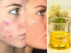 Can oils cure hyperpigmentation? Carrier oils and essential oils are great for curing hyperpigmentation because they heal the skin on a cellular level. Essential Oils For Eczema, Oils For Sinus, Primrose Oil, Evening Primrose, Natural Supplements For Anxiety, Castor Oil For Skin, Oily Skin Treatment, Acne Oil