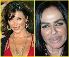 Celebrities before and after a plastic surgery Michaela Romanini Plastic Surgery - Best Eye Surgery Bad Celebrity Plastic Surgery, Botched Plastic Surgery, Bad Plastic Surgeries, Plastic Surgery Gone Wrong, Celebrity Surgery, Facial Cosmetic Surgery, Worst Celebrities, Celebs, Celebrities Before And After