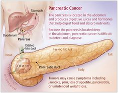 This JAMA Patient Page describes risks, diagnosis, and treatment of pancreatic cancer. Medical Surgical Nursing, Oncology Nursing, Pancreatic Diet Recipes, Liver Anatomy, Pancreatic Cancer Awareness Month, Radiation Therapy, Medical Design, Endocrine System, Pancreatitis Symptoms