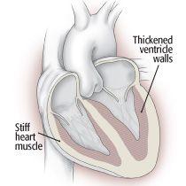 Diastolic heart failure - no time to relax! Harvard Health Publications