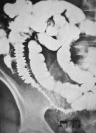 radiation enteritis radiology - Google Search Google Search, Art, Radiology, Art Background, Kunst, Performing Arts, Art Education Resources, Artworks