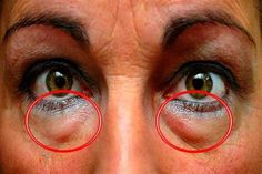 The best natural treatments to remove dark circles and bags under the eyes. Some people are more likely than others to have dark circles or puffiness in . Wrinkle Remover, Blackhead Remover, Eye Circles, Dark Circles, Under Eye Bags, Vicks Vaporub, Tips Belleza, Natural Treatments, Natural Remedies